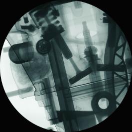 Radiografická metoda